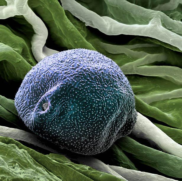 2. Вторая «преступница» аллергии – березовая пыльца. «В одной сережке березы может быть до 5,5 милли