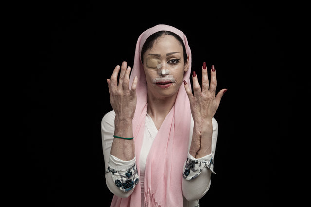 Asghar Khamseh, Iran. Shortlist, Professional , Contemporary Issues. Acid throwing is a kind of viol