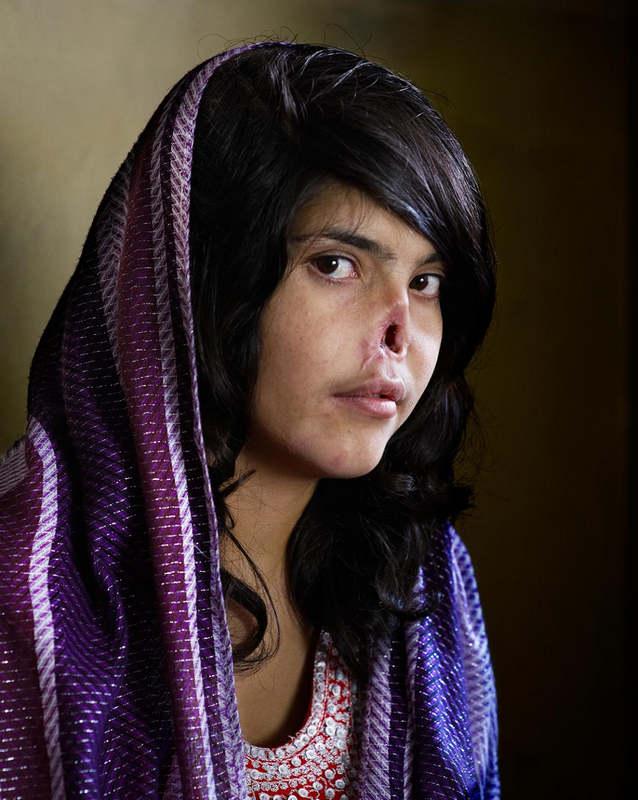 18-летняя Биби Айша (Bibi Aisha) была изуродована своим мужем как возмездие за то, что она от него с