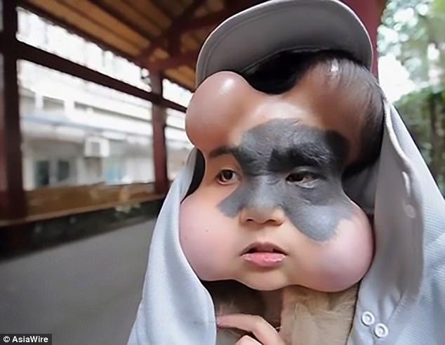 Девушка с 4 шарами на лице отращивает кожу для будущей операции