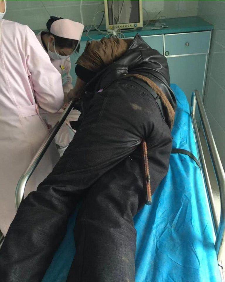 Врачи шесть часов оперировали строителя, упавшего на ржавый стальной прут
