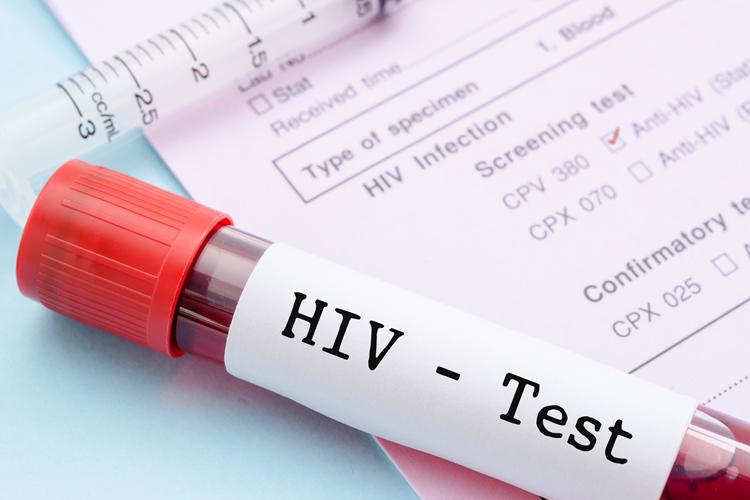 болезнь ВИЧ возникновение СПИД теории