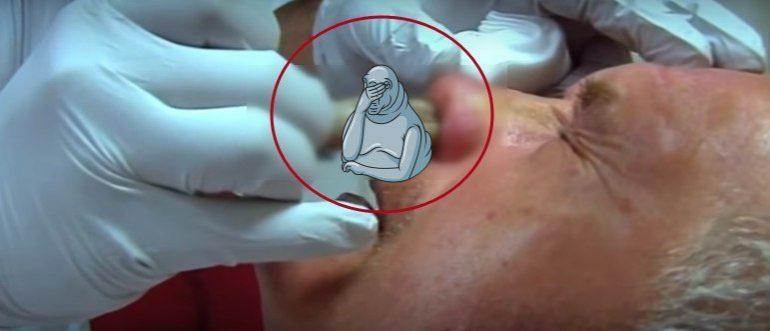 Доктор вытащил из пациента нечто ужасное… (1 фото)