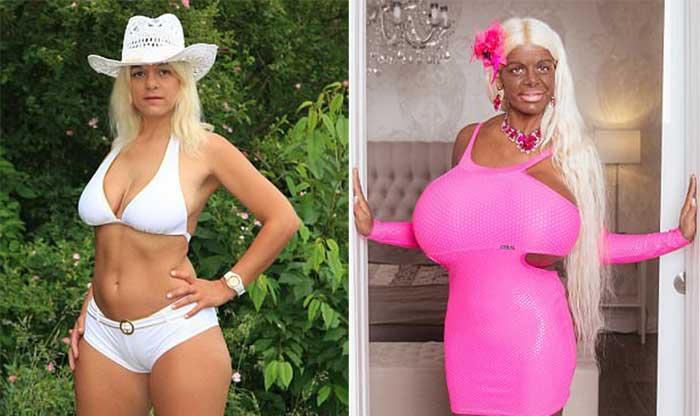 Мартина утверждает, что у нее самая большая грудь в Европе. У нее уникальные импланты, которые можно
