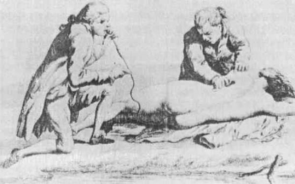 Жуткие медицинские процедуры Средневековья (часть 3) (1 фото) 18+