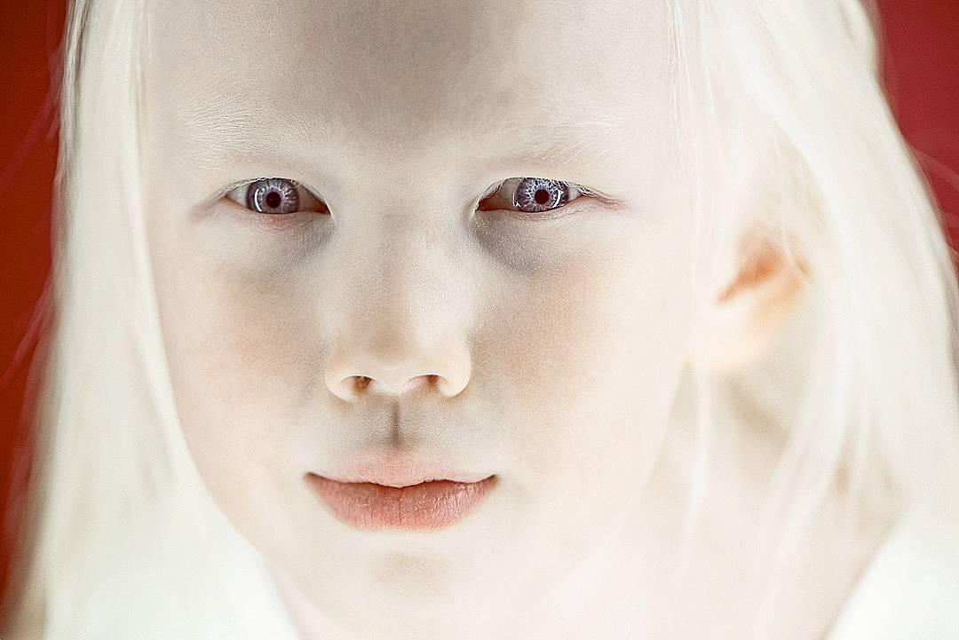 Ее внешность привлекла всеобщее внимание, после того как портреты девочки разместил в соцсетях фотог