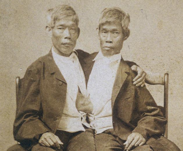 Сиамские близнецы с Сиама (1 фото)