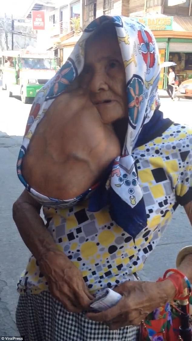 Неудачное удаление родинки привело к появлению опухоли с арбуз (2 фото)