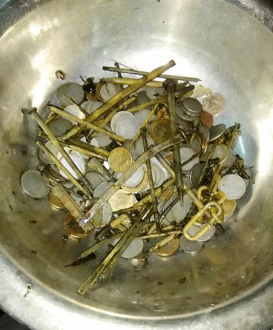 Из желудка индийца извлекли 263 монет и 100 гвоздей