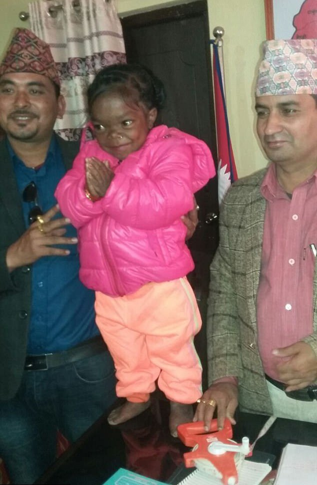 19-year-old girl from Nepal weighs 13 kg with height of 88 centimeters