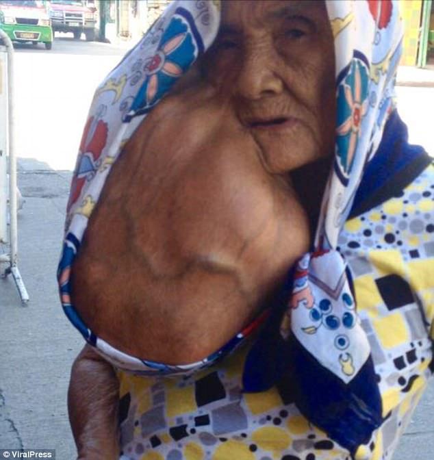 Неудачное удаление родинки привело к появлению опухоли с арбуз