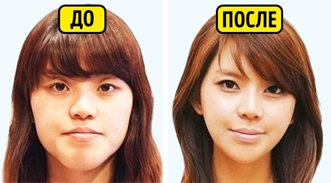 © lotus-secret.ru      Пластическая хирургия вЮжной Корее одновременно что-то само собой