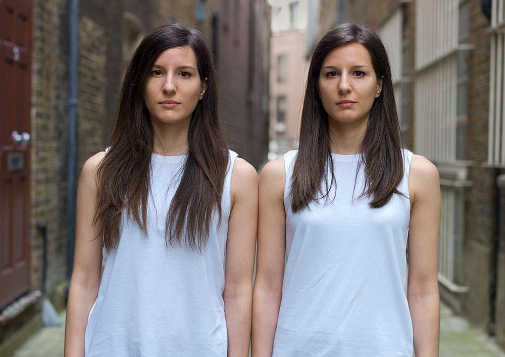 Сходство в различиях: сравнение близнецов (15 фото)