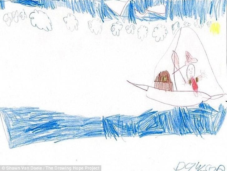 10. У Доусона развился менингит, когда ему было всего 2 месяца, в результате чего возникли кровотече