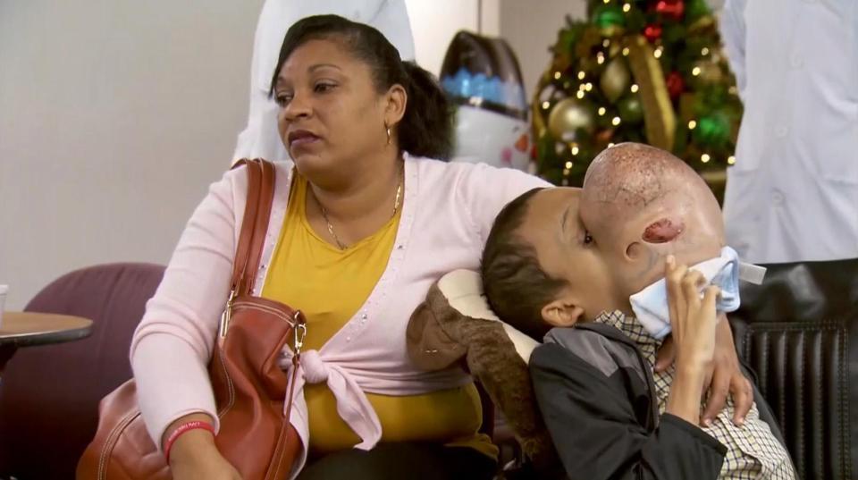 Прыщик на носу мальчика превратился в огромную опухоль