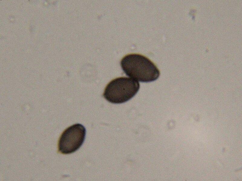 Споры гриба навозник белый (Coprinus comatus, копринус белый) под микроскопом: черного цвета, похожие на семена кунжута, взятые из чёрной жижи после автолиза плодового тела