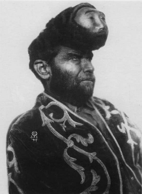 Паскуаль Пиньон (1889-1929), известный как «двухголовый мексиканец»,