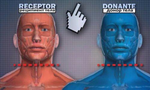 Пересадка головы или тела - вот, в чём вопрос