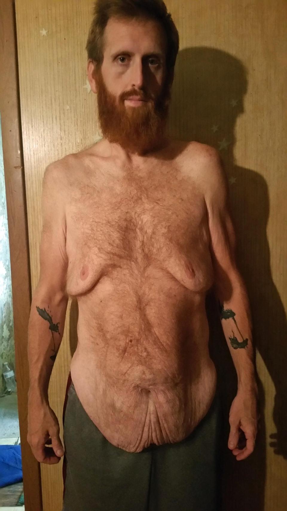 Чтобы не умереть от лишнего веса, американец скинул 160 кг