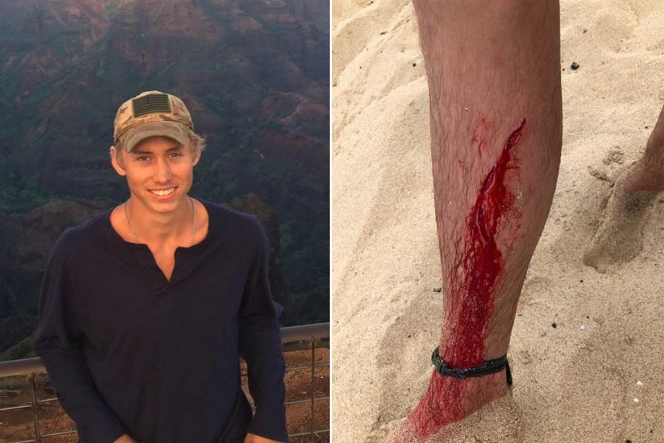 20-летний американец пережил нападение змеи, медведя и акулы
