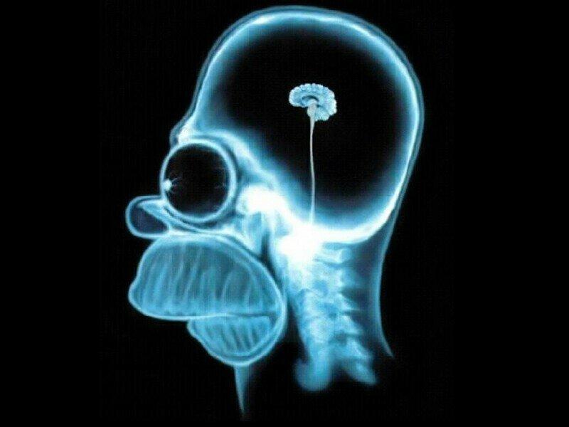 5 способов, с помощью которых ваш мозг превращает вас в идиота