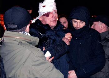 В Киеве бойцы «Беркута» жестоко избили экс-министра МВД Украины