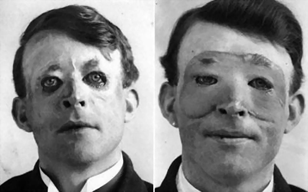 Вальтер Ио – один из первых, кто прошел пластическую операцию и пересадку кожи, 1917 год.
