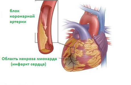 Обширный инфаркт симптомы помощь