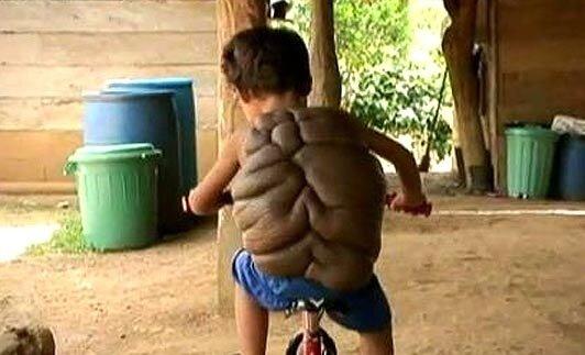 Дидье Монталво. Мальчик – черепаха