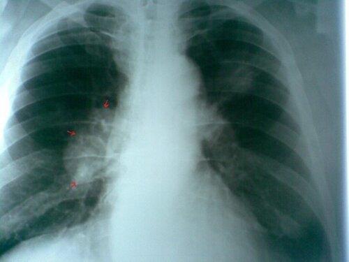 Пятнадцатая выкуренная сигарета вызывает рак легких!