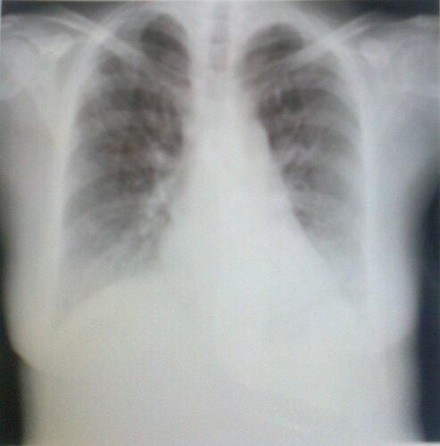 Туберкулез в правом легком | Rentgenolog.Info