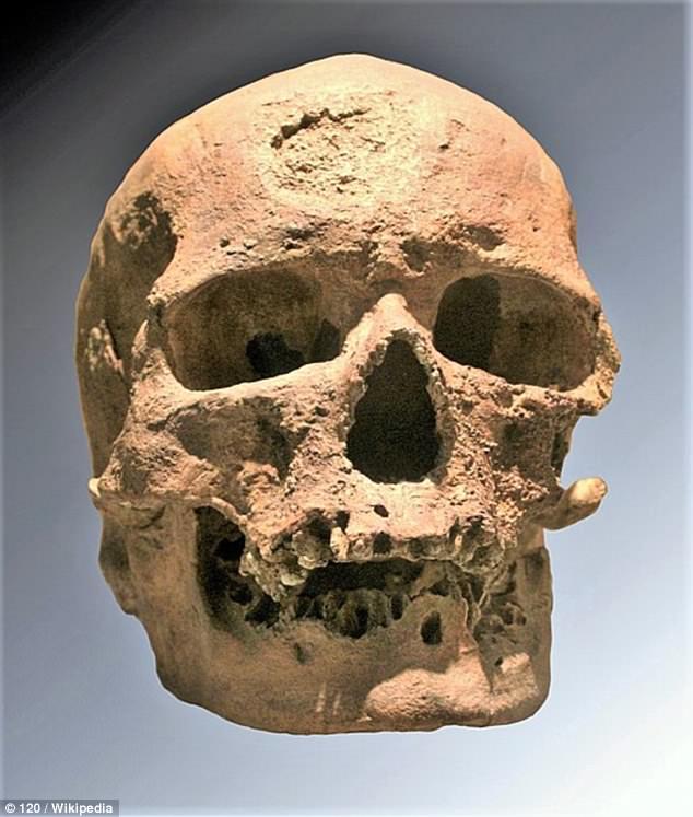 Ученые воссоздали внешность кроманьонца, лицо которого покрыто опухолями (4 фото)