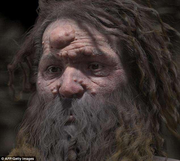 Ученые воссоздали внешность кроманьонца, лицо которого покрыто опухолями