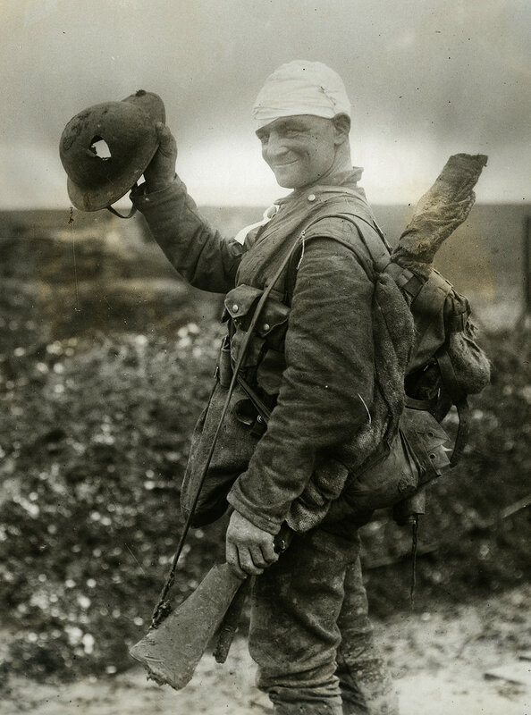 Saved by a shrapnel helmet - This soldier on the way to hospital after being bandaged at Field Dressing Station, shows the helmet which saved his life