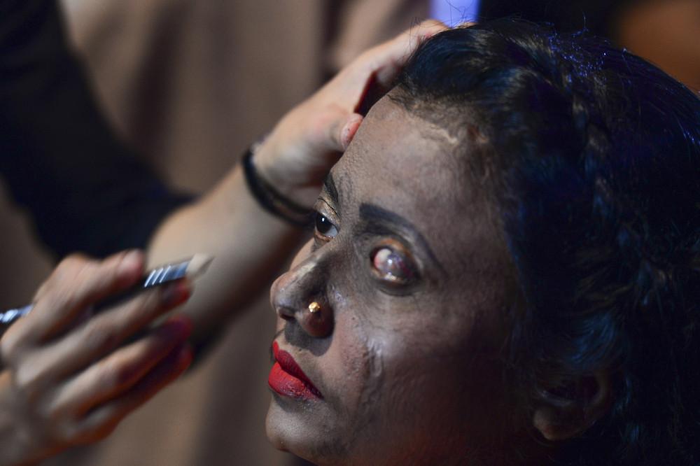 Жертвы кислотных атак вышли на подиум в Бангладеш