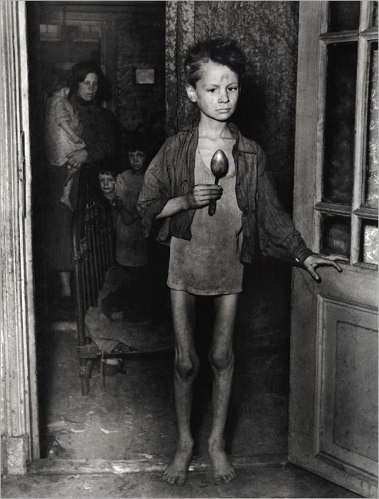 Голодная зима в Голландии 1944-1945 годов.