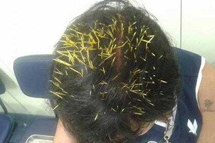 Дикобраз свалился на голову несчастной бразильянки
