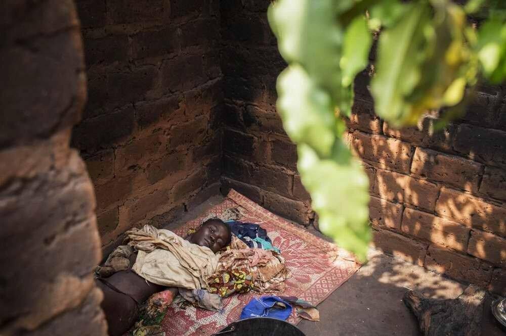 Эта мусульманка со страшными ожогами на своем теле лежит в доме своей матери