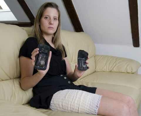 Фейерверк и запах горелой плоти: смартфон поджарил 18-летнюю девушку