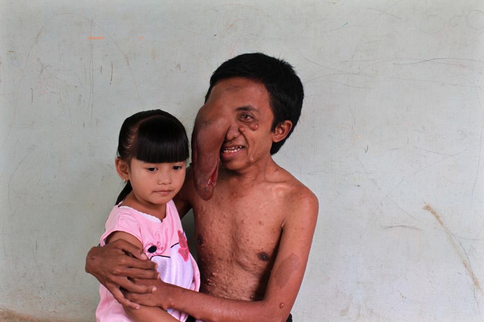 Невероятная опухоль на лице, с которой мужчина не расстается с детства (4 фото)