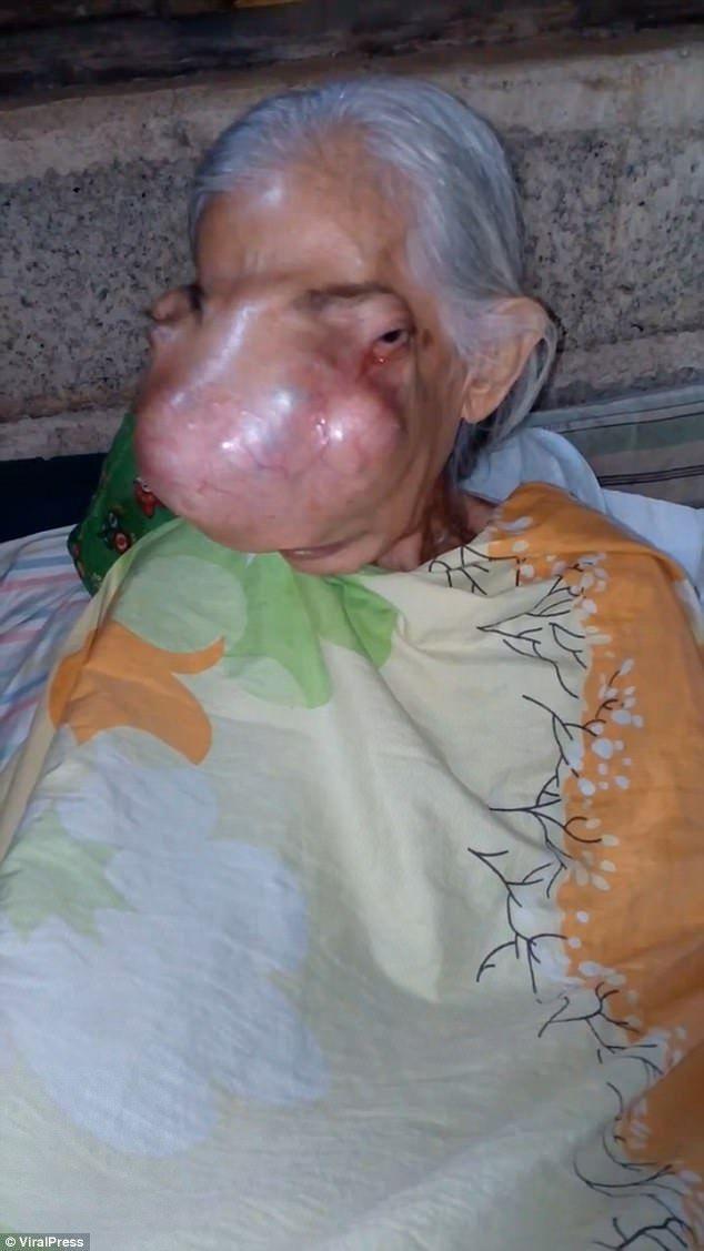Опухоль разрушает череп пожилой филлипинки