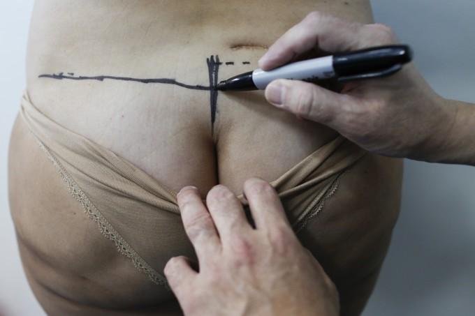Интимная хирургия республика беларусь