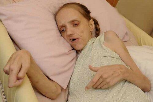 35-летняя любительница пива превратилась в умирающую старуху