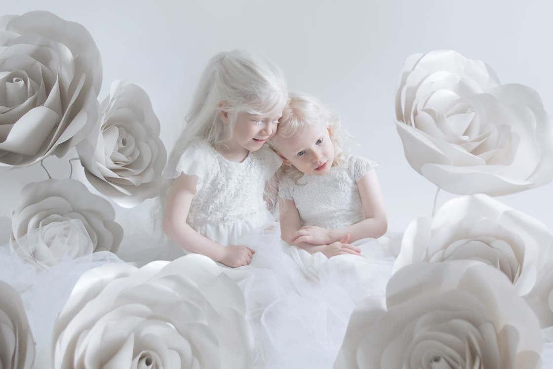 Porcelain Beauty – A photographer captures the beauty of albinos (17 pics)