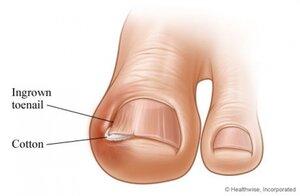 Лечим воспаление вросшего ногтя