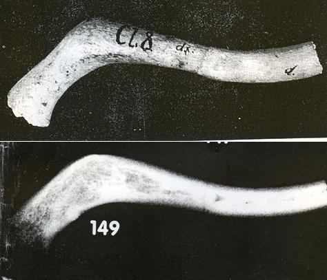 03-fracture.jpg