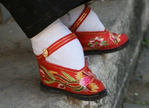 Бинтова?ние ног — обычай, практиковавшийся в Китае (особенно в аристократической среде) с начала X д