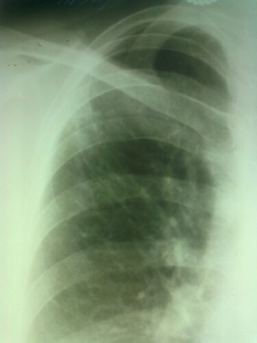 Туберкулез в правом легком