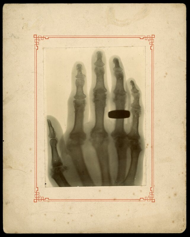 X-ray of a woman's hand, taken by Sir Arthur Schuster, 1896