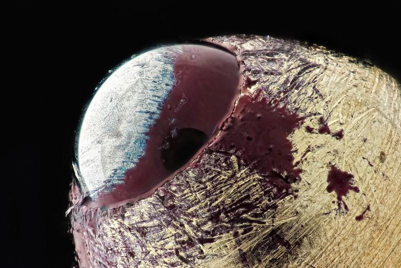 Фото залупу под микроскопом фото 18-987